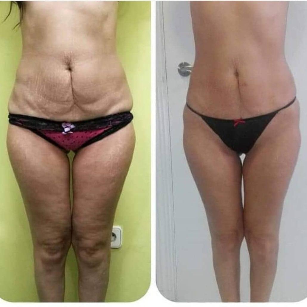 body shaping treatment kensington
